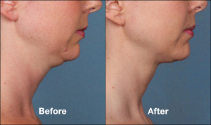 Kybella_female_SideView