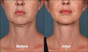 kybella_female_before_after